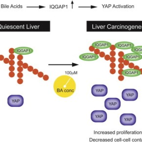 A pile-up of bile acids marks the path to livercancer