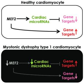 Myotonic dystrophy disrupts normal control of gene expression in the heart