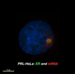 High throughput microscopy zeroes in on new estrogen receptorregulator