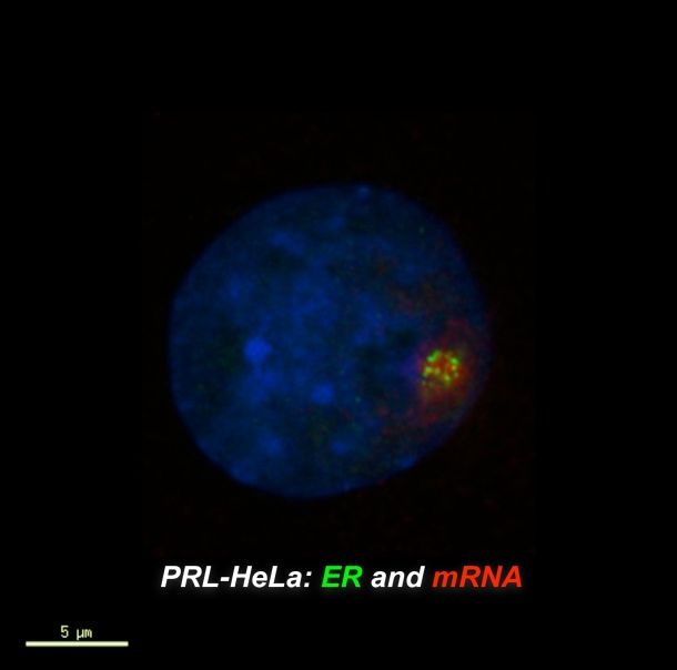 In this image of a cell in culture, the estrogen receptor is in green the messenger RNA is in red.