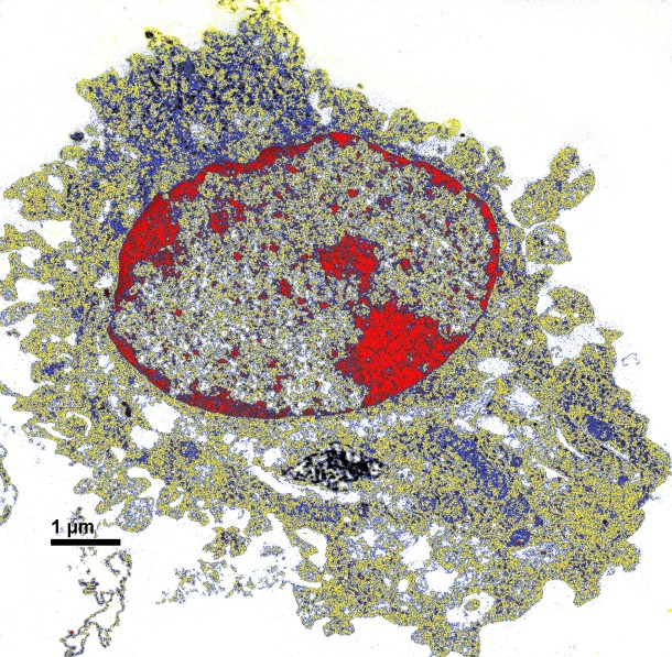 Tunneling electron microscope image of a lung antigen-presenting cell engulfing nanoparticulate carbon black.