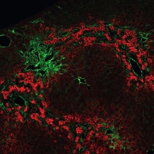 A hepatic lobule from an adult Jag1 heterozygous mice stained for wide- spectrum cytokeratin (red) and alpha smooth muscle actin (green) shows extensive ductular reactions in the periportal areas.