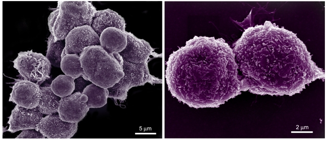 Mouse mammary carcinoma 4T1 cells in pseudo-colored scanning electron micrographs.