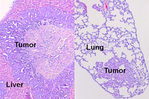 Notch activation promotes metastatic diseases in the Pten-null mouse model. Figure represents that Hematoxylin and eosin staining of the metastatic lesions in liver and lung. (Courtesy of L. Xin and Oh-Joon Kwon.)