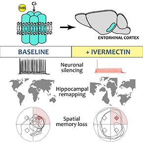 A new experimental system sheds light on how memory loss mayoccur