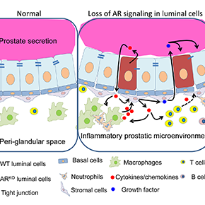 A new mechanism to explain benign prostatichyperplasia