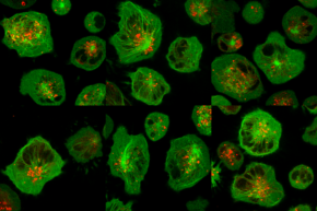 Image of the Month: Human natural killer cells preparing to deliver a lethal strike to diseased cells