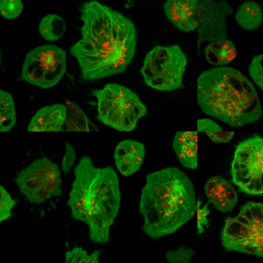 Image of the Month: Human natural killer cells preparing to deliver a lethal strike to diseasedcells