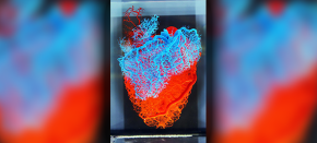 Image of the Month: the Human Heart