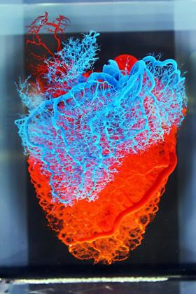 heart-veins-and-arteries-med-museum