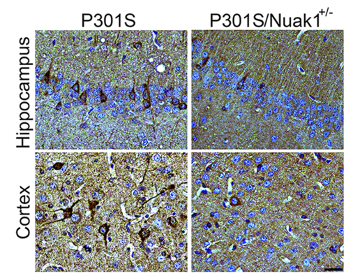 Brain section from mouse carrying the dementia-causing P301S mutation in human tau shows accumulation of tau neurofibrillary tangles (in dark brown, left). When Nuak1 levels are decreased by 50% (P301S/Nuak1+/-; right), fewer tau tangles accumulate. Courtesy Cristian Lasagna-Reeves/Zoghbi lab.