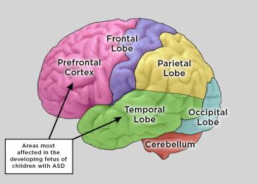 brainfinal