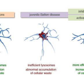 Juvenile Batten disease, a problem with cellular wastemanagement