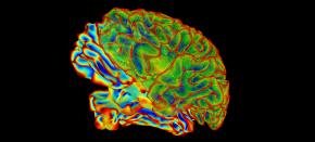 Breakdown of neuron-glia partnership can pave the way to neurodegeneration