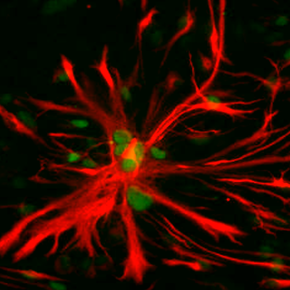 Image of the Month: The underappreciated astrocyte