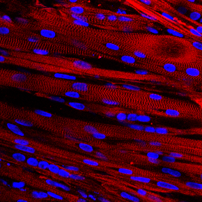 Muscle's path to maturity follows the alternative splicingway