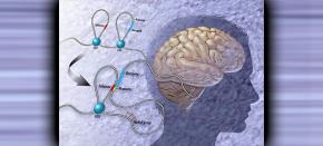 DNA loops matter for NFIA gene expression in braintumors