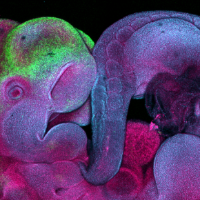 Image of the Month: Mouse embryo imaged with confocal microscopy